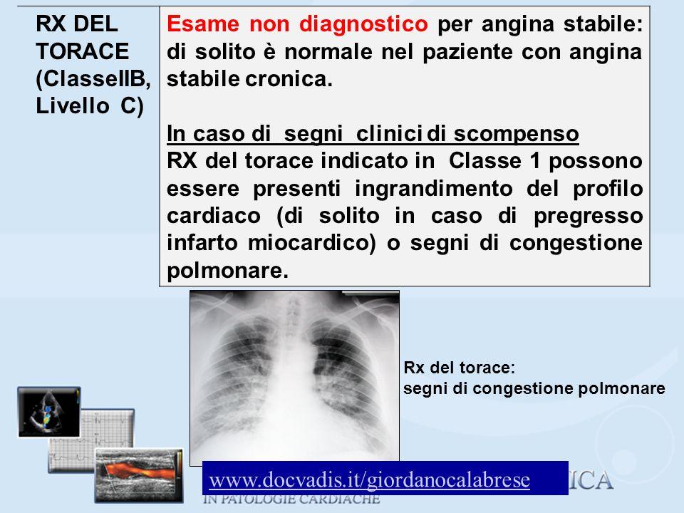RX DEL TORACE (ClasseIIB, Livello C) Esame non diagnostico per angina stabile: di solito è normale nel paziente con angina stabile cronica. In caso di