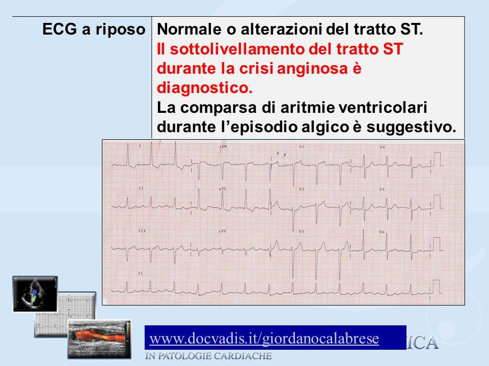 ECG a riposoNormale o alterazioni del tratto ST. Il sottolivellamento del tratto ST durante la crisi anginosa è diagnostico. La comparsa di aritmie ve