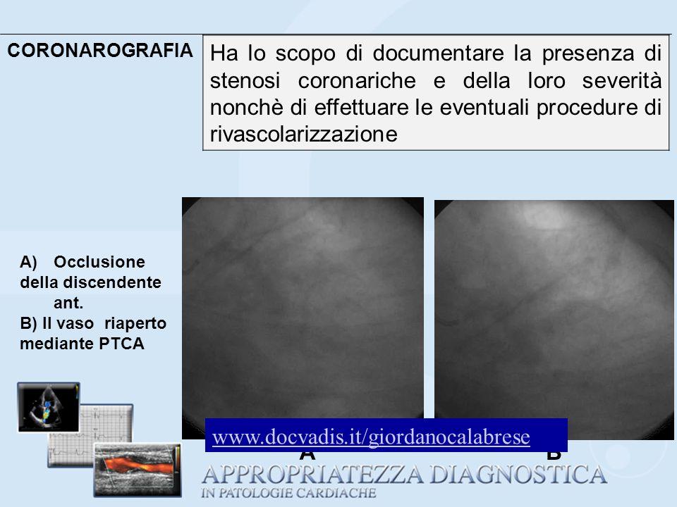 CORONAROGRAFIA Ha lo scopo di documentare la presenza di stenosi coronariche e della loro severità nonchè di effettuare le eventuali procedure di riva