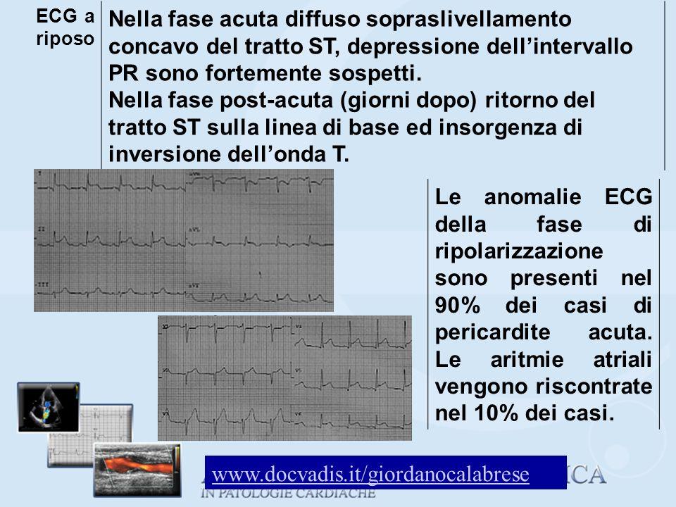 ECG a riposo Nella fase acuta diffuso sopraslivellamento concavo del tratto ST, depressione dellintervallo PR sono fortemente sospetti. Nella fase pos