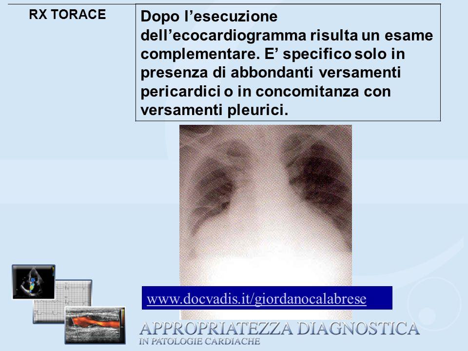 RX TORACE Dopo lesecuzione dellecocardiogramma risulta un esame complementare. E specifico solo in presenza di abbondanti versamenti pericardici o in