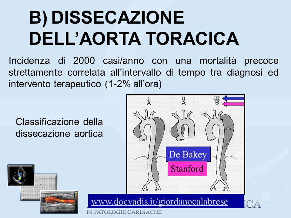 B) DISSECAZIONE DELLAORTA TORACICA Incidenza di 2000 casi/anno con una mortalità precoce strettamente correlata allintervallo di tempo tra diagnosi ed