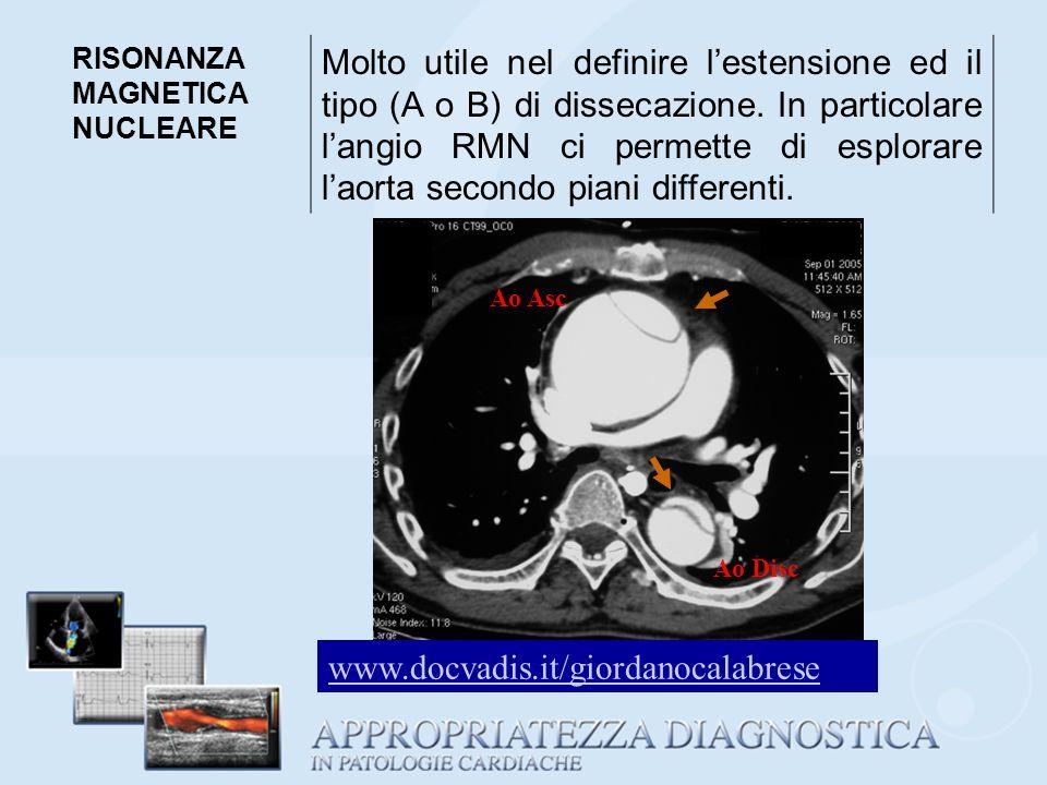 RISONANZA MAGNETICA NUCLEARE Molto utile nel definire lestensione ed il tipo (A o B) di dissecazione. In particolare langio RMN ci permette di esplora