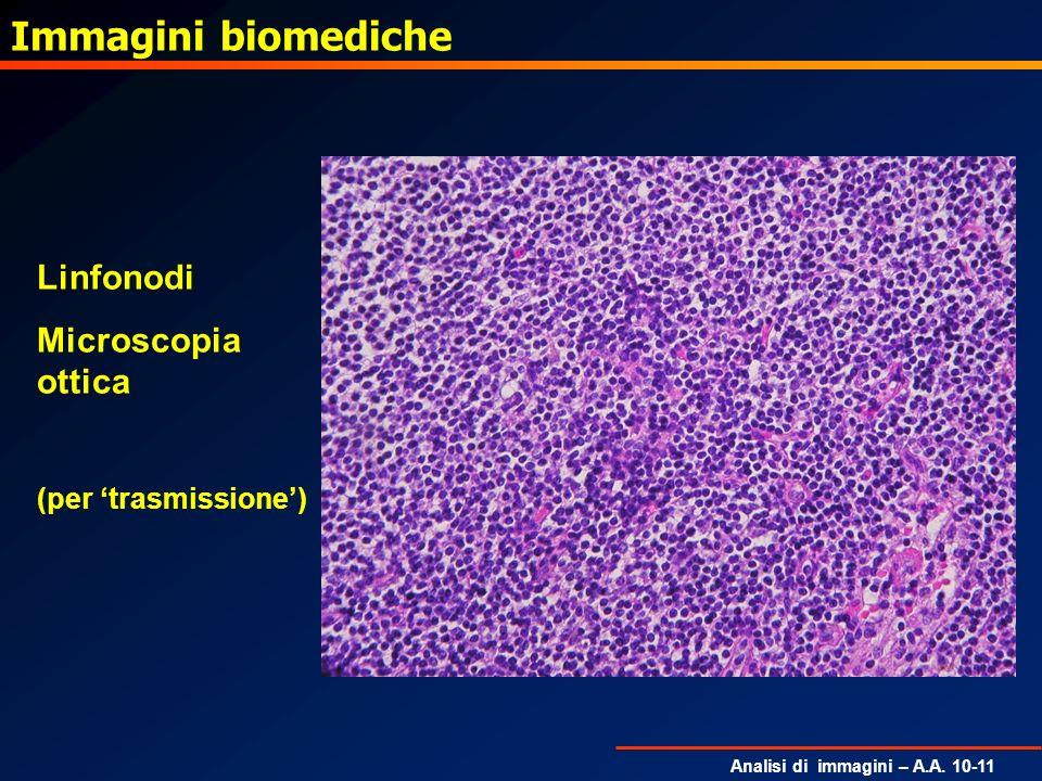 Analisi di immagini – A.A. 10-11 Immagini biomediche Linfonodi Microscopia ottica (per trasmissione)
