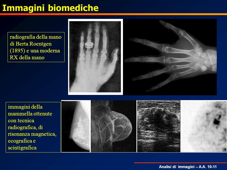 Analisi di immagini – A.A. 10-11 Immagini biomediche radiografia della mano di Berta Roentgen (1895) e una moderna RX della mano immagini della mammel