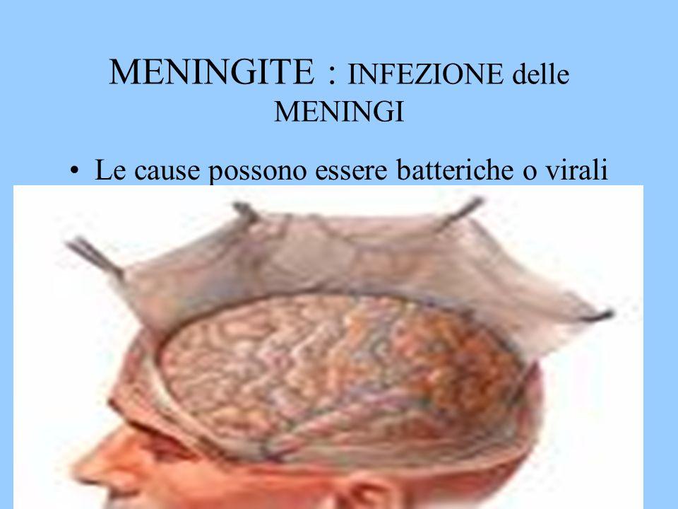 MENINGITE : INFEZIONE delle MENINGI Le cause possono essere batteriche o virali