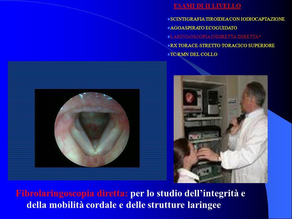 SCINTIGRAFIA TIROIDEA CON IODIOCAPTAZIONE AGOASPIRATO ECOGUIDATO LARINGOSCOPIA INDIRETTA/DIRETTA* RX TORACE-STRETTO TORACICO SUPERIORE TC/RMN DEL COLLO ESAMI DI II LIVELLO Fibrolaringoscopia diretta: Paralisi ricorrenziale sinistra dopo tiroidectomia:posizione respiratoria (a), posizione fonatoria (b).