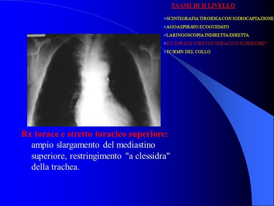 Rx torace e stretto toracico superiore: Metastasi macronodulari diffuse polmonari da neoplasia follicolare della tiroide plurimetastatizzata.