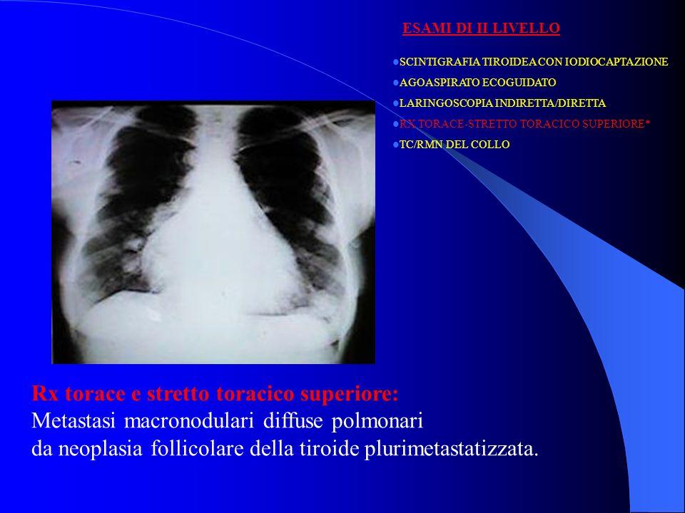SCINTIGRAFIA TIROIDEA CON IODIOCAPTAZIONE AGOASPIRATO ECOGUIDATO LARINGOSCOPIA INDIRETTA/DIRETTA RX TORACE-STRETTO TORACICO SUPERIORE TC/RMN DEL COLLO * ESAMI DI II LIVELLO TC e/o RMN: -IN PRESENZA DI NEOPLASIE ALTAMENTE INVASIVE -IN PRESENZA DI NEOPLASIE RECIDIVE