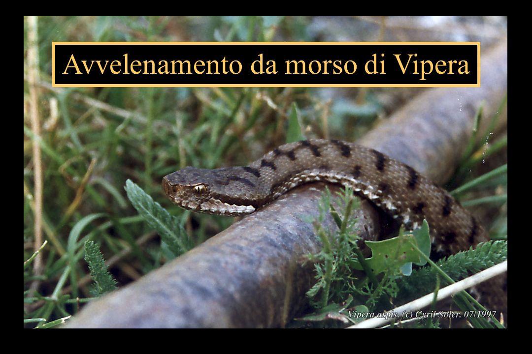 Avvelenamento da morso di Vipera