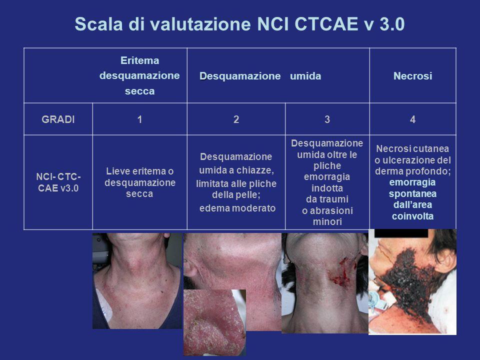 Eritema desquamazione secca D DesquamazioneumidaNecrosi GRADI1234 NCI- CTC- CAE v3.0 Lieve eritema o desquamazione secca Desquamazione umida a chiazze