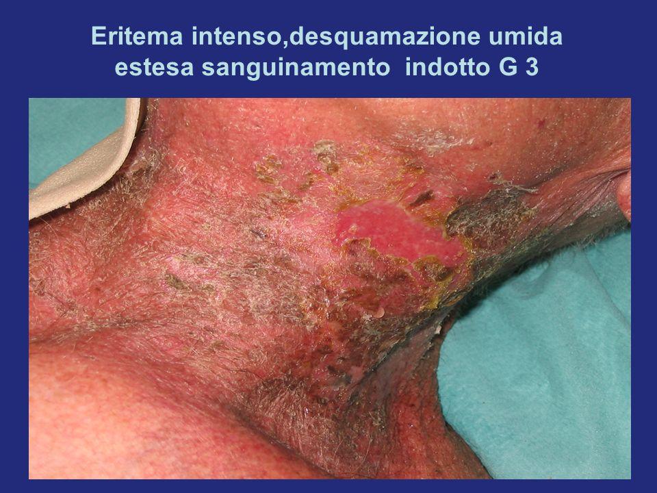4 casi trattati presso il Day Hospital Pazienti affetti da ca squamocellulare del distretto orofaringeo trattati con chemio-radioterapia integrata 2 pazienti presentavano radiodermite G1, evoluta in G3 in 2 gg, complicata da sovrainfezione batterica (Staphilococcus Aerus) e guariti in 12 gg con trattamenti quotidiani e terapia antibiotica sistemica (ceftriaxone) 1 paziente presentava radiodermite G1 con guarigione in 5 giorni con applicazioni di gel con sucralfato 1 paziente attualmente in gestione con radiodermite G1 in trattamento attivo chemio-radiante monitorato ogni 2 gg trattato con gel al sucralfato