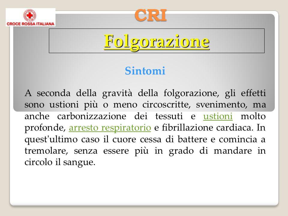 CRI Folgorazione Sintomi A seconda della gravità della folgorazione, gli effetti sono ustioni più o meno circoscritte, svenimento, ma anche carbonizza