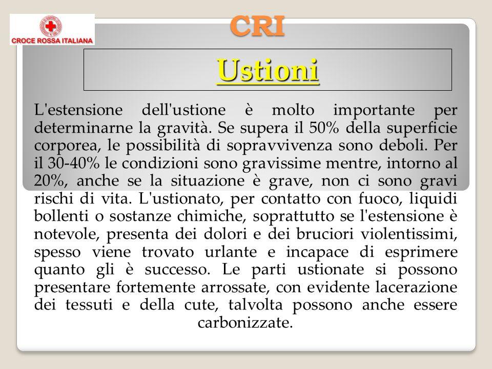 CRI Ustioni L'estensione dell'ustione è molto importante per determinarne la gravità. Se supera il 50% della superficie corporea, le possibilità di so