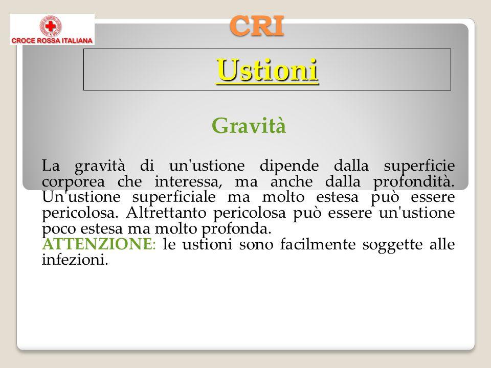 CRI Gravità La gravità di un'ustione dipende dalla superficie corporea che interessa, ma anche dalla profondità. Un'ustione superficiale ma molto este