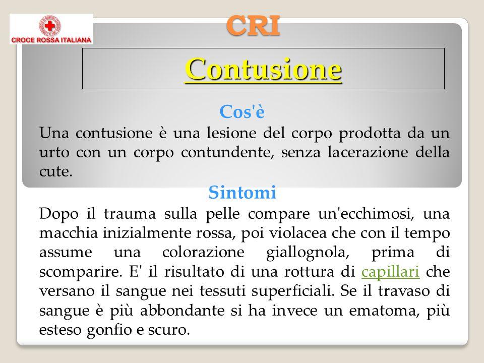 CRI Contusione Cos'è Una contusione è una lesione del corpo prodotta da un urto con un corpo contundente, senza lacerazione della cute. Sintomi Dopo i