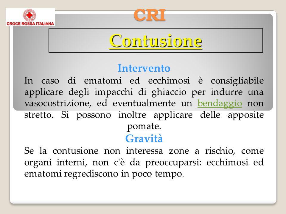 CRI Contusione Intervento In caso di ematomi ed ecchimosi è consigliabile applicare degli impacchi di ghiaccio per indurre una vasocostrizione, ed eve