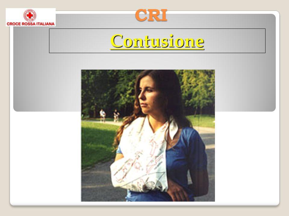 CRI Contusione