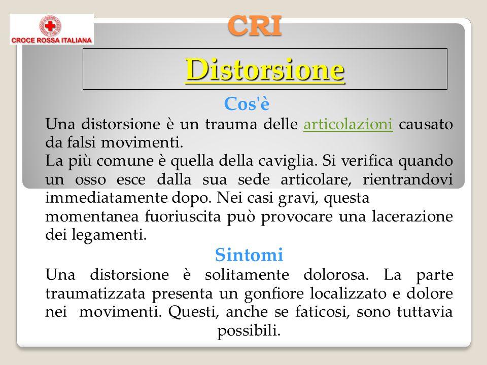 CRI Cos'è Una distorsione è un trauma delle articolazioni causato da falsi movimenti.articolazioni La più comune è quella della caviglia. Si verifica