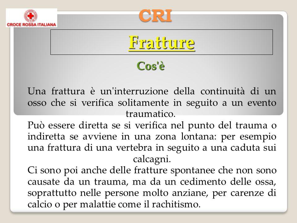 CRI Fratture Cos'è Una frattura è un'interruzione della continuità di un osso che si verifica solitamente in seguito a un evento traumatico. Può esser