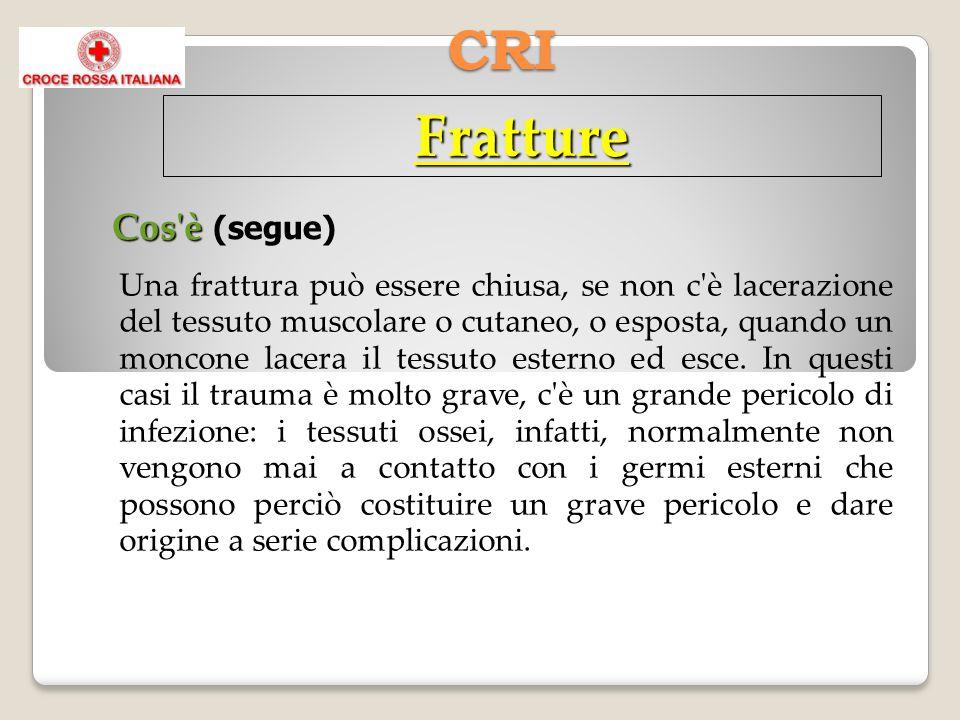CRI Fratture Cos è Cos è (segue) Una frattura può essere chiusa, se non c è lacerazione del tessuto muscolare o cutaneo, o esposta, quando un moncone lacera il tessuto esterno ed esce.