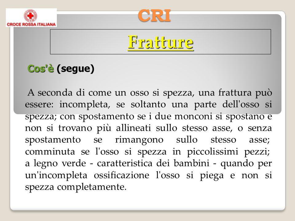 CRI Fratture Cos'è Cos'è (segue) A seconda di come un osso si spezza, una frattura può essere: incompleta, se soltanto una parte dell'osso si spezza;