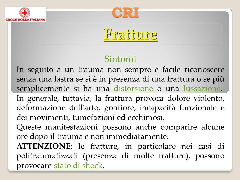 CRI Fratture Sintomi In seguito a un trauma non sempre è facile riconoscere senza una lastra se si è in presenza di una frattura o se più semplicemente si ha una distorsione o una lussazione.