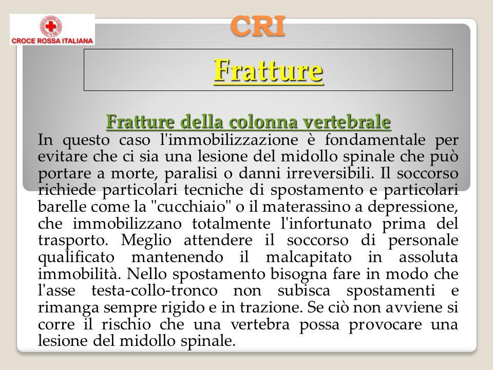 CRI Fratture Fratture della colonna vertebrale In questo caso l immobilizzazione è fondamentale per evitare che ci sia una lesione del midollo spinale che può portare a morte, paralisi o danni irreversibili.