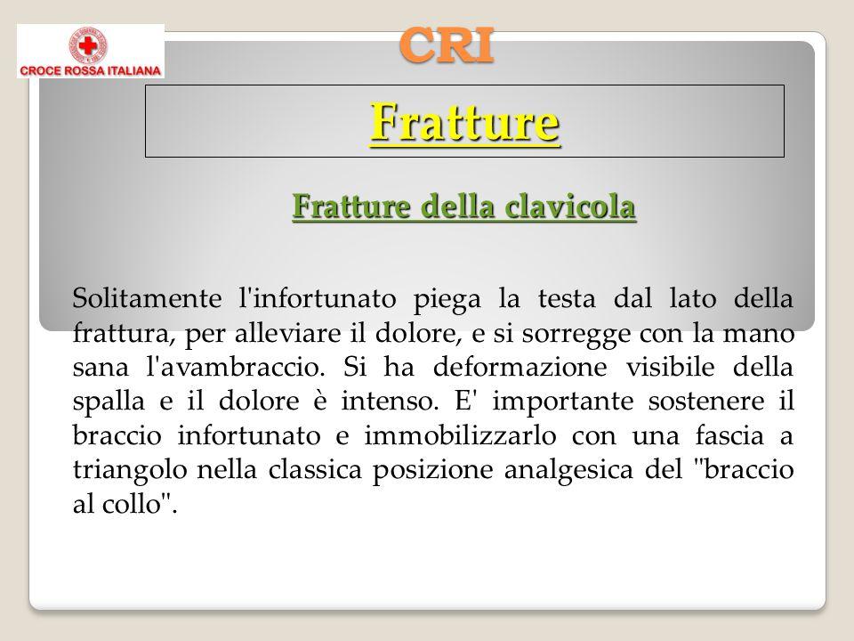 CRI Fratture Fratture della clavicola Solitamente l infortunato piega la testa dal lato della frattura, per alleviare il dolore, e si sorregge con la mano sana l avambraccio.