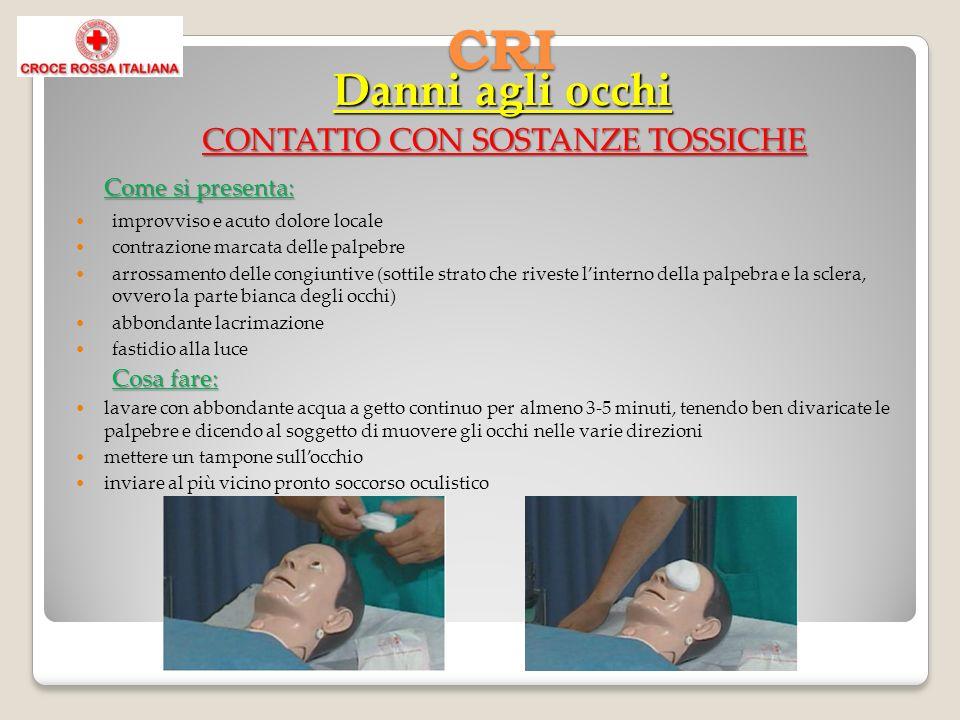 CONTATTO CON SOSTANZE TOSSICHE Come si presenta: improvviso e acuto dolore locale contrazione marcata delle palpebre arrossamento delle congiuntive (s