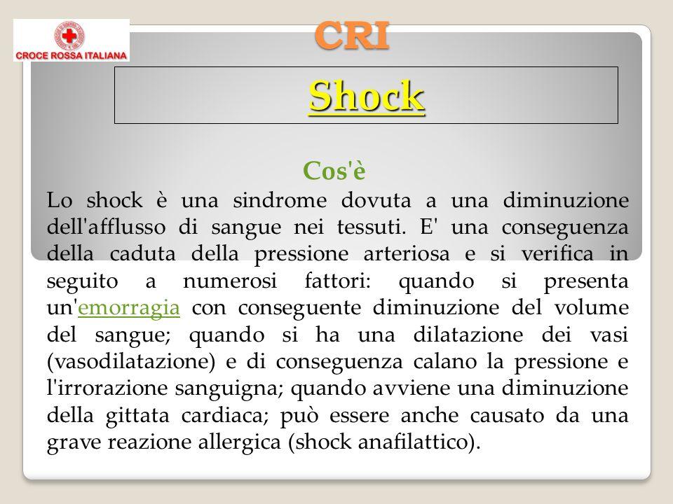 CRI Shock Cos'è Lo shock è una sindrome dovuta a una diminuzione dell'afflusso di sangue nei tessuti. E' una conseguenza della caduta della pressione