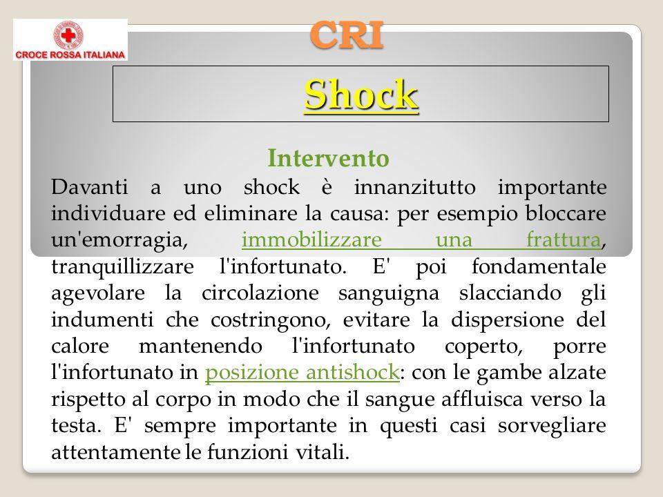 CRI Shock Intervento Davanti a uno shock è innanzitutto importante individuare ed eliminare la causa: per esempio bloccare un emorragia, immobilizzare una frattura, tranquillizzare l infortunato.