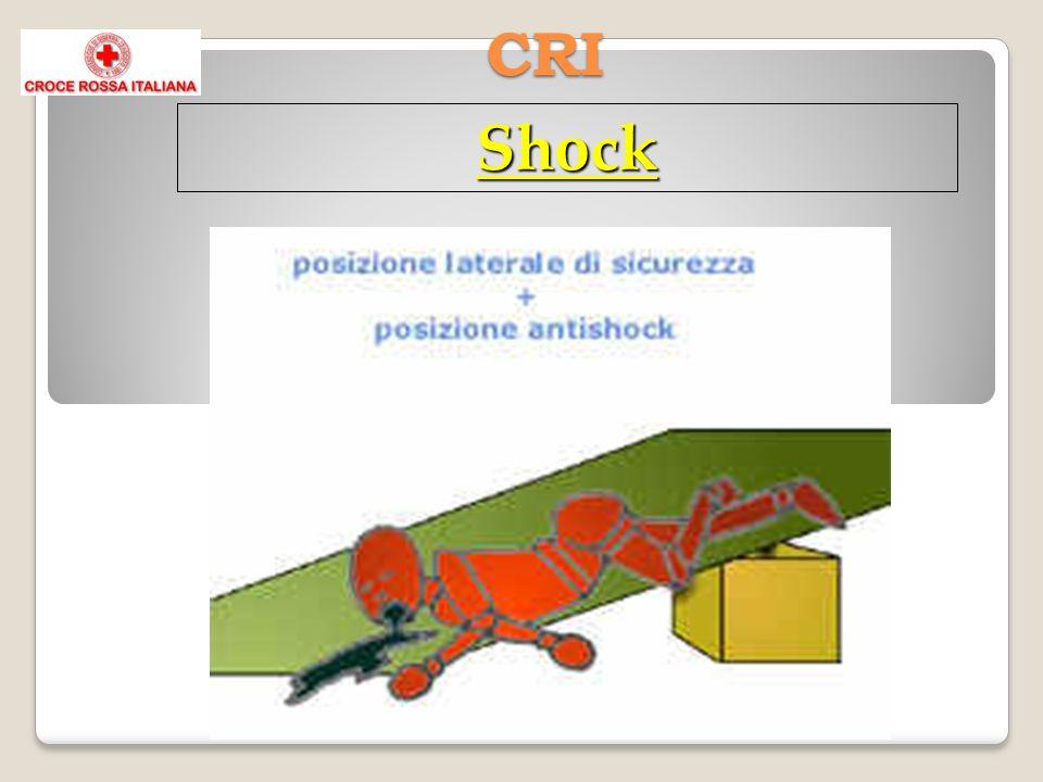 CRI Shock