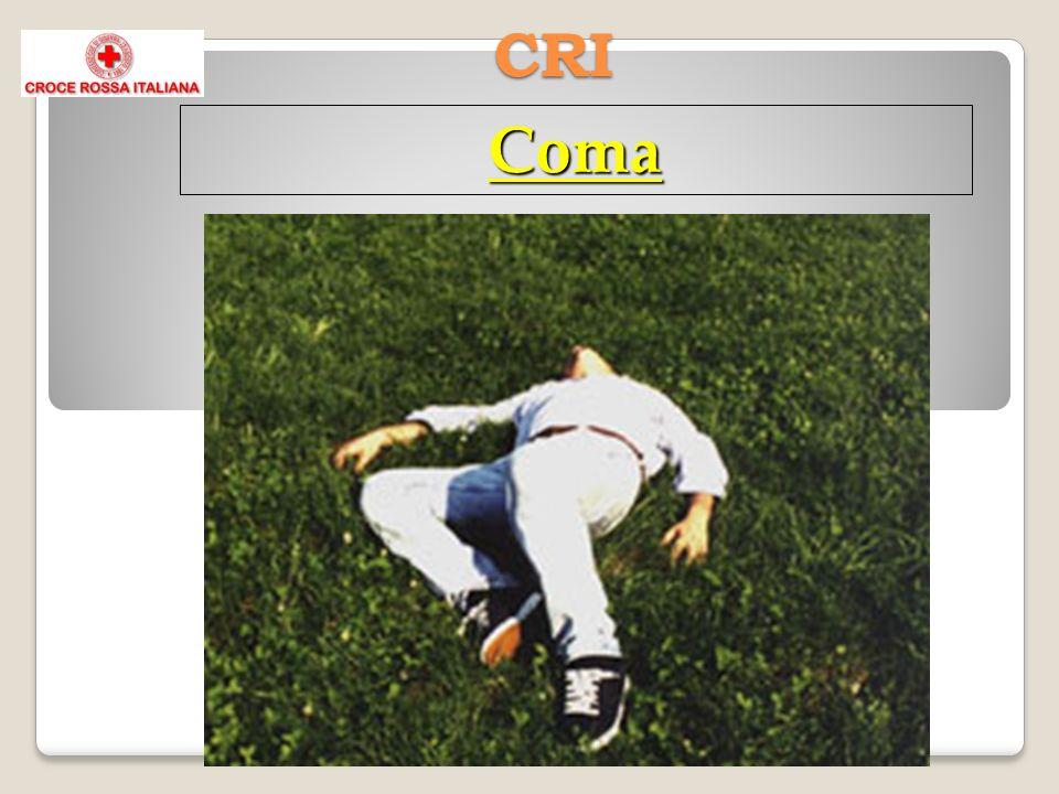 CRI Coma