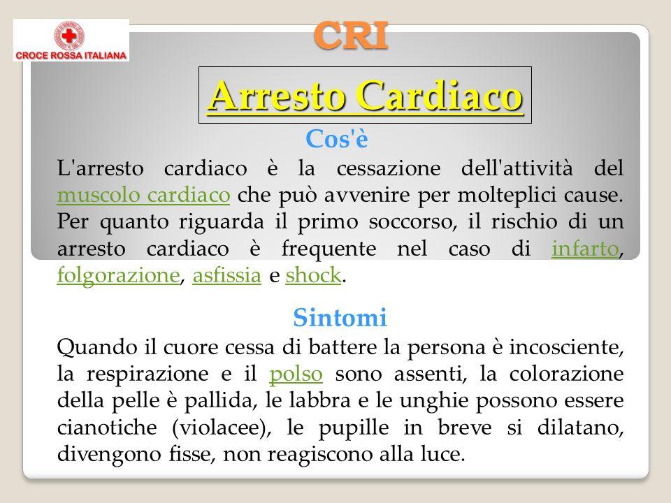 CRI Cos'è L'arresto cardiaco è la cessazione dell'attività del muscolo cardiaco che può avvenire per molteplici cause. Per quanto riguarda il primo so