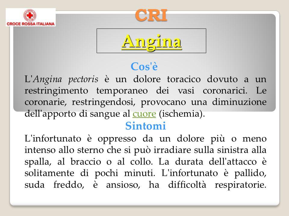 CRI Angina Cos'è L'Angina pectoris è un dolore toracico dovuto a un restringimento temporaneo dei vasi coronarici. Le coronarie, restringendosi, provo