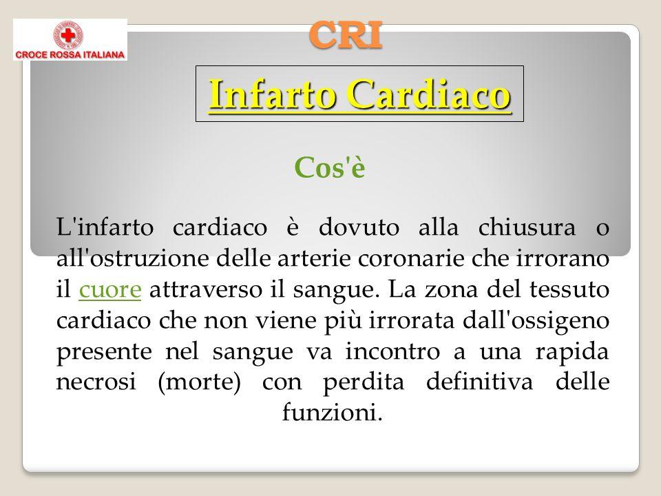 CRI Cos è L infarto cardiaco è dovuto alla chiusura o all ostruzione delle arterie coronarie che irrorano il cuore attraverso il sangue.