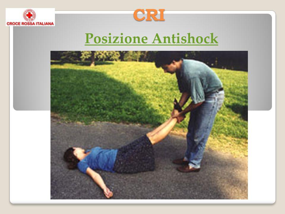 CRI Shock Cos è Lo shock è una sindrome dovuta a una diminuzione dell afflusso di sangue nei tessuti.