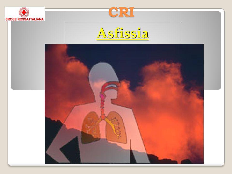 CRI Asfissia