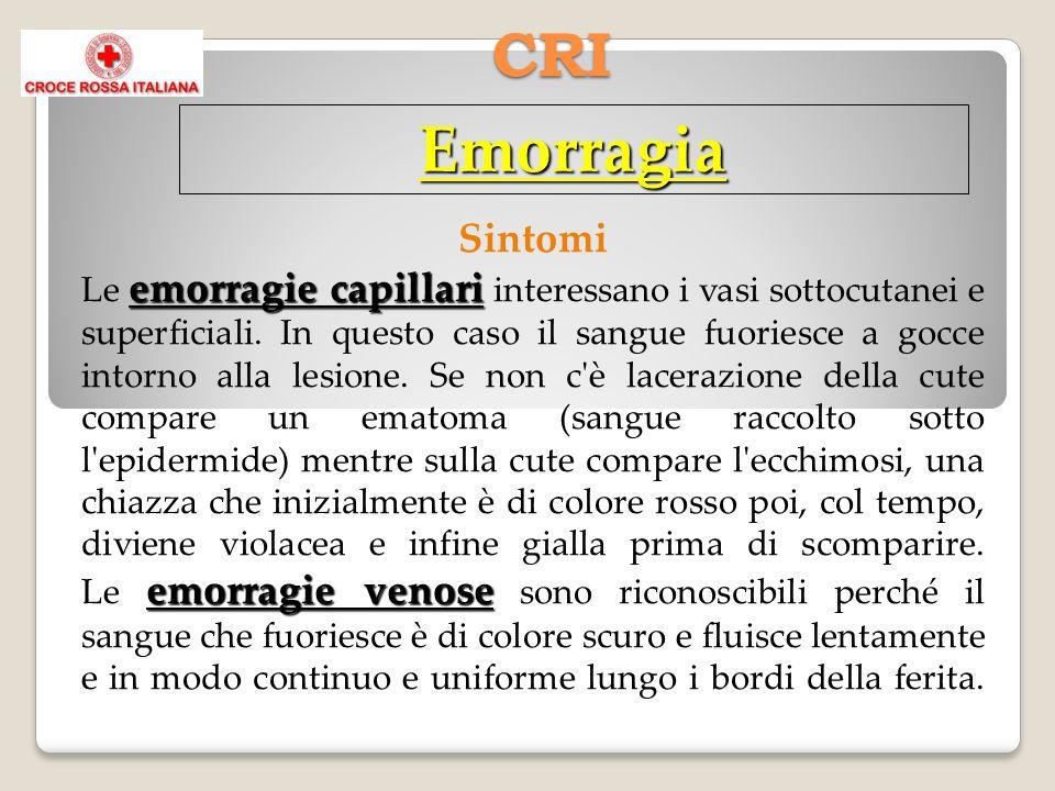 CRI Emorragia emorragie capillari emorragie venose Sintomi Le emorragie capillari interessano i vasi sottocutanei e superficiali.
