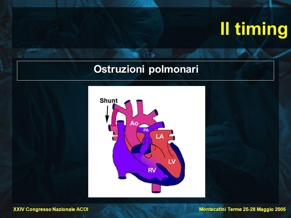 Montecatini Terme 25-28 Maggio 2005 XXIV Congresso Nazionale ACOI Il timing Ostruzioni polmonari