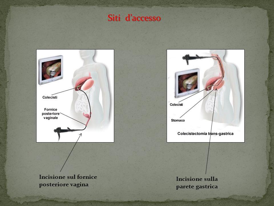 Decubito Decubito ginecologico Trendelemburg – lateralità sx Fase addominale) ( Fase addominale) Fase ginecologica) Antitrendeleburg –lateralità sx (