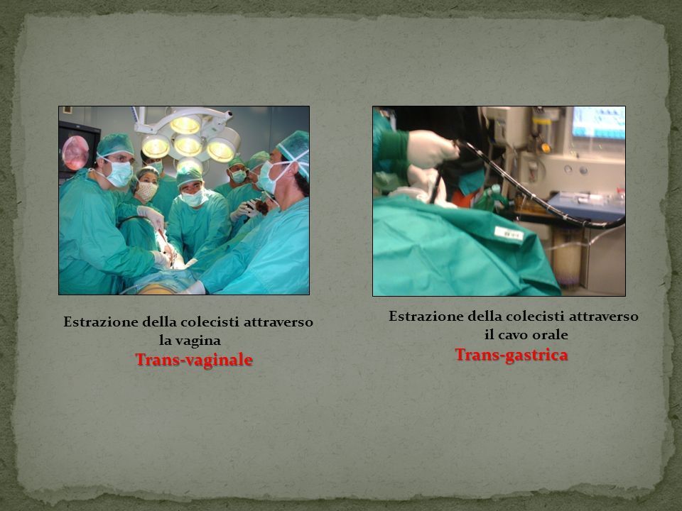 Chirurgo Endoscopista Sinegismo