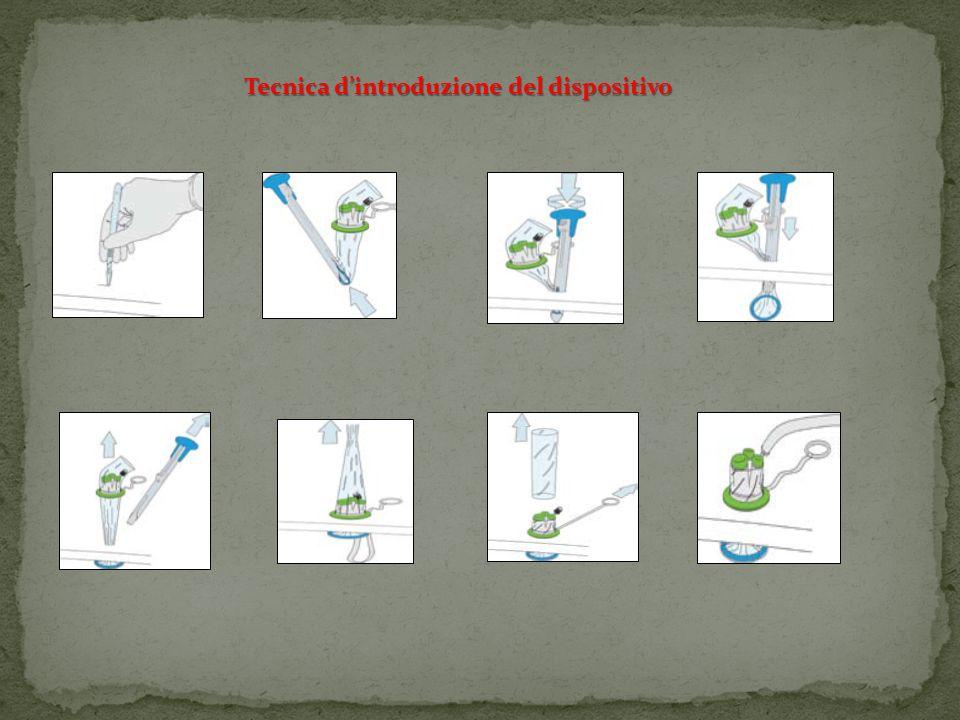Triport Quadriport Strumenti Ottica Insufflatore 10 mm 5 mm Diametro 2 cm Diametro 2,5cm