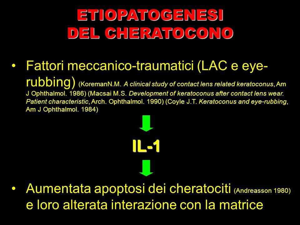 IL-1 Fattori meccanico-traumatici (LAC e eye- rubbing) (KoremanN.M. A clinical study of contact lens related keratoconus, Am J Ophthalmol. 1986) (Macs