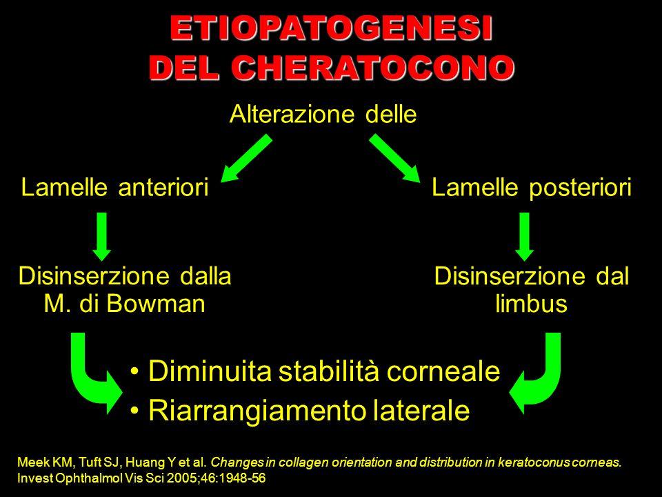 Alterazione delle Lamelle anterioriLamelle posteriori Disinserzione dalla M. di Bowman Disinserzione dal limbus Diminuita stabilità corneale Riarrangi
