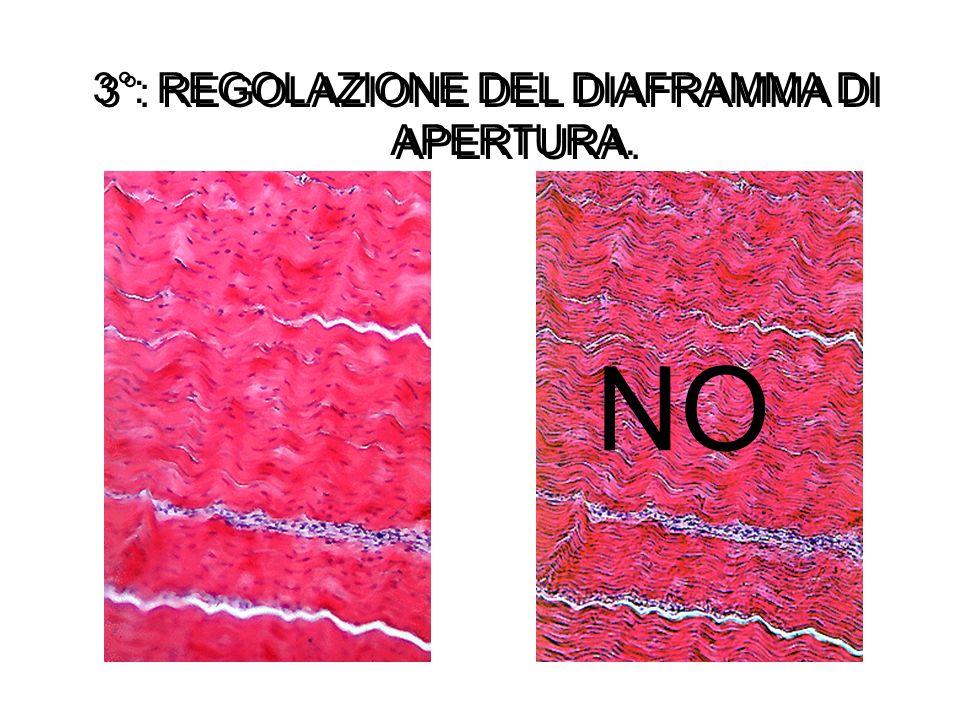 3°: REGOLAZIONE DEL DIAFRAMMA DI APERTURA. 3°: REGOLAZIONE DEL DIAFRAMMA DI APERTURA. NO