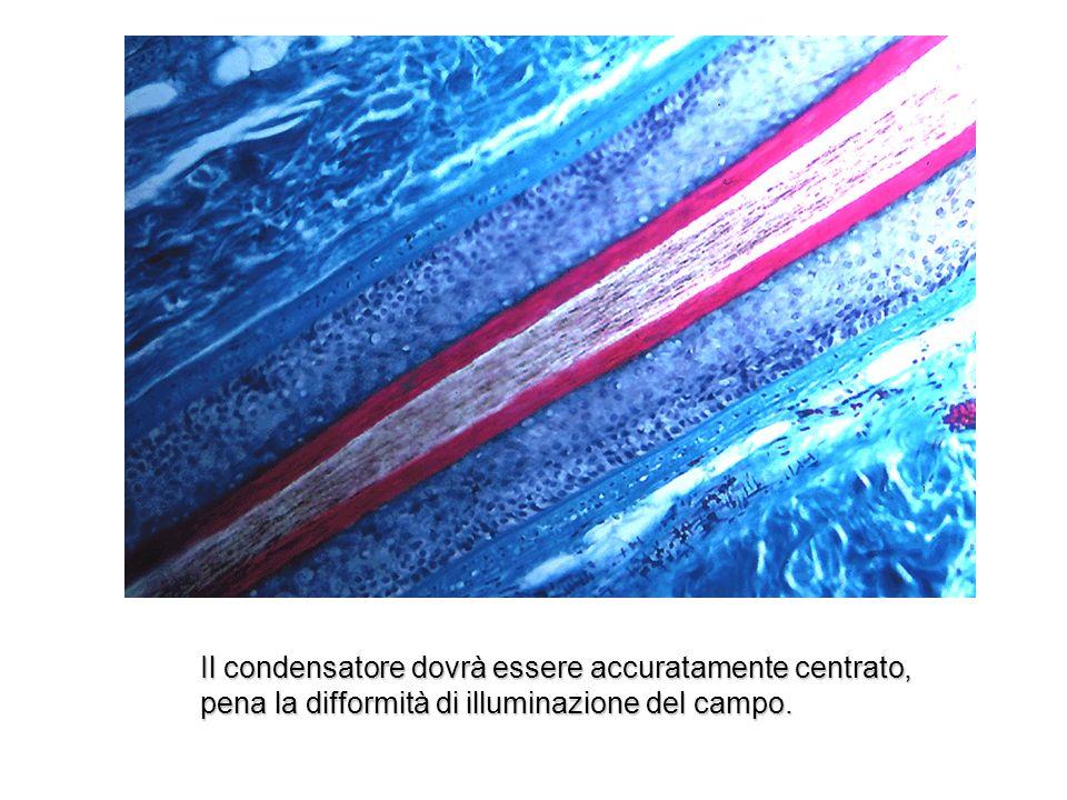 Il condensatore dovrà essere accuratamente centrato, pena la difformità di illuminazione del campo.