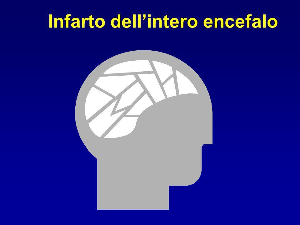 Infarto dellintero encefalo