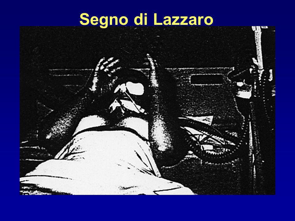 Segno di Lazzaro